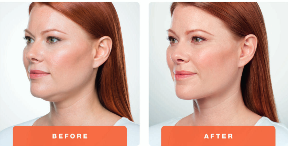 Kybella+Before+&+After